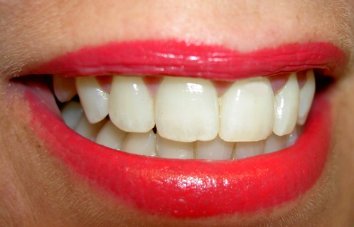 Comment blanchir les dents naturellement ?
